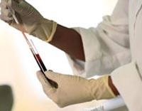 بیماری ایدز,علائم بیماری ایدز,راه انتقال ویروس ایدز