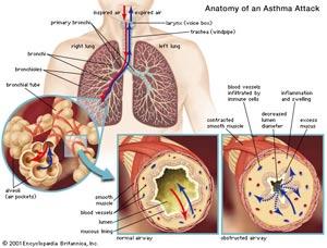 آسم,بیماری آسم,درمان آسم,علت آسم,درمان بیماری آسم,آسم در کودکان,علائم آسم
